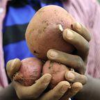 Die Süßkartoffel enthält relativ viel Oxalsäure.