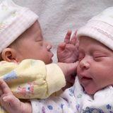 Kaiserschnitt - Zwillinge: Ist ein Kaiserschnitt nötig?