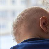 Baby mit wenig Haar. Haarausfall bei Babys kann ein Problem sein.