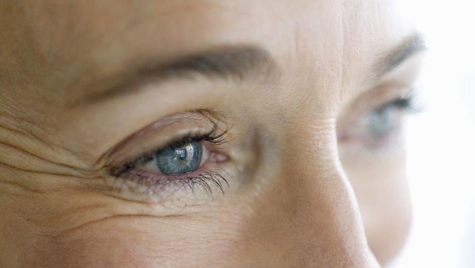 Hyaluron bei Krähenfüßen: So wirkt die Wunderwaffe bei Augenfalten.jpg