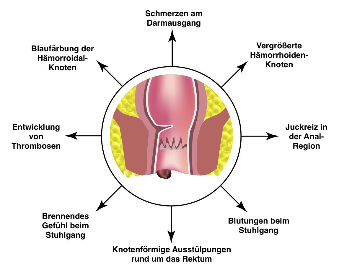 Syptome von Hämorrhoiden: Scherzen am Darmausgang, Vergrößerte Hämorrhoiden-Knoten, Juckreiz am After, Blutungen beim Stuhlgang, Knotenförmige Ausstülpungen rund ums Rektum, Brennen beim Stuhlgang, Entwicklung von Thrombosen, Blaufärbung der Hämorrhoidal-