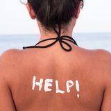 Schnellhilfe bei Sonnenbrand