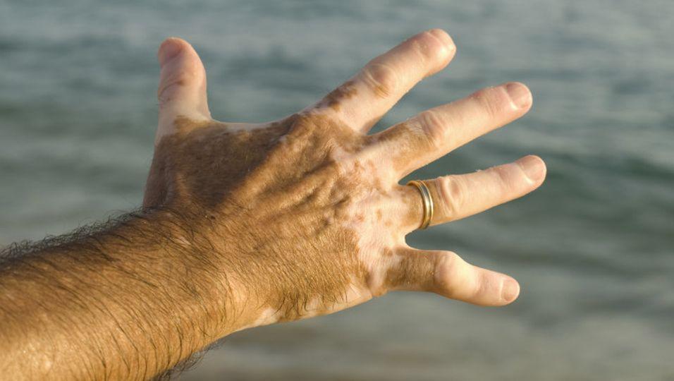 Hauterkrankung - Vitiligo: Weißfleckenkrankheit