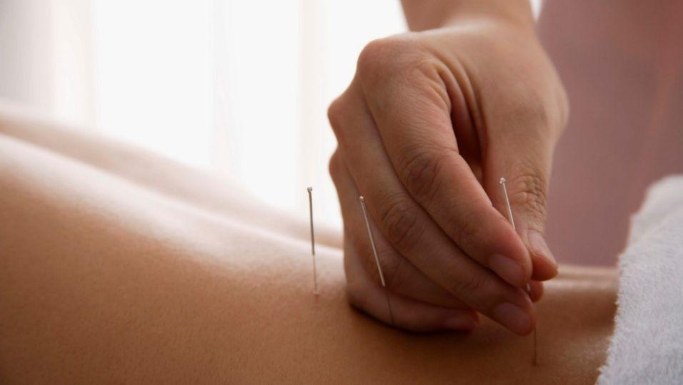 Alternative Behandlung - Chronische Schmerzen: Akupunktur hilft