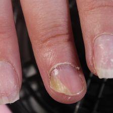 Mittelfinger mit Nagelpilz
