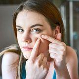 Hyaluronsäure: Mit nur einer Kapsel am Tag wirst du lästige Mitesser los