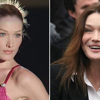 Botox, Carla Bruni