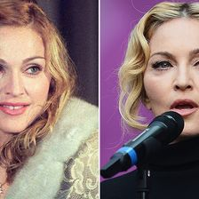 Botox, Madonna