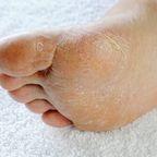Summer Foot Fußmaske Main2
