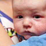 Neugeborenes mit Ausschlag im Gesichtchen