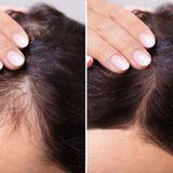 90 % weniger Haarausfall dank diesem Spray