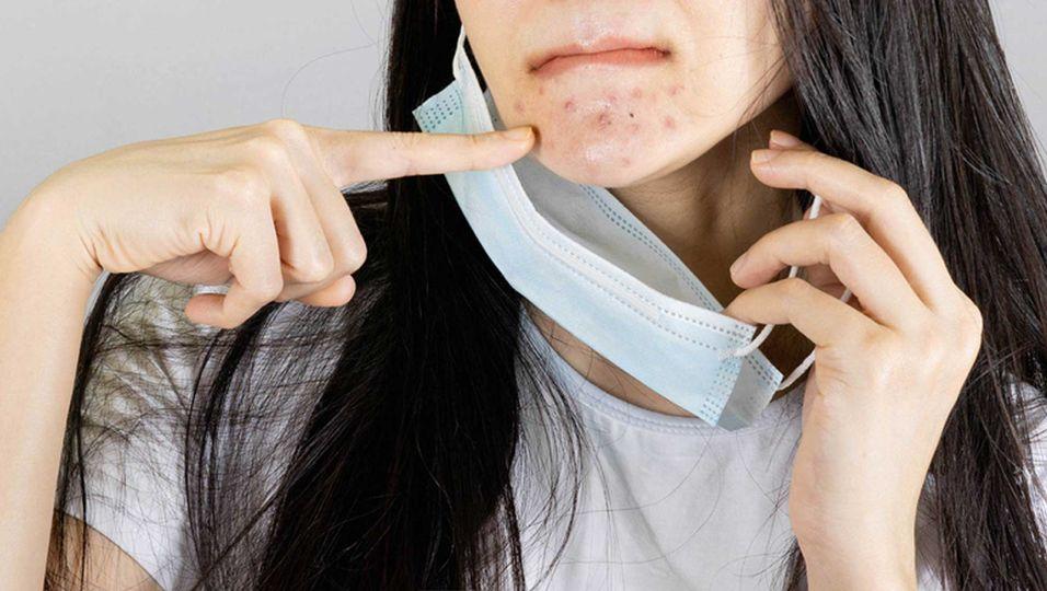 """""""Maskne"""": So vermeidest Du Hautunreinheiten unter der Maske"""