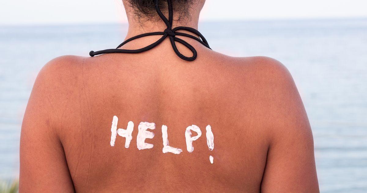 Sonnenbrand: 4 einfache Hausmittel leisten schnelle Abhilfe