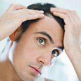 Dichtes Haar - Haartransplantation bei Haarausfall?