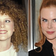 Botox, Nicole Kidman
