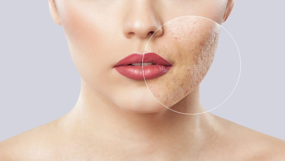 Poren komplett verschwinden lassen? Mit diesem Serum klappt es