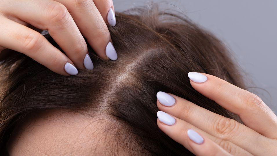 Mit genau diesem Set besiegte eine Profistylistin ihren Haarausfall