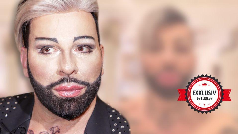 Botox-Rückfall! So sieht er jetzt aus