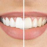 1.500 Bewertungen: Diese Zahnbleaching-Streifen halten ihr Versprechen!