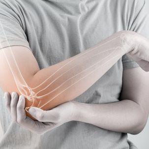 osteoporose-istock-607276174.jpg
